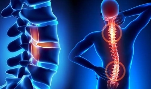 Foundation for Chiropractic Progress Supports Findings of JAMA Spinal Manipulation Therapy Study