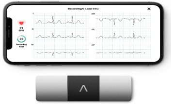 AliveCor Brings World's Only Six-lead, FDA-cleared Personal ECG to India